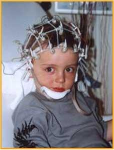 孩子高烧惊厥有没有必要做脑电图